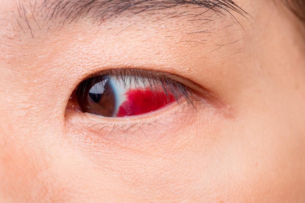 desgarro retiniano