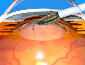 implantación de lente intraocular ICL