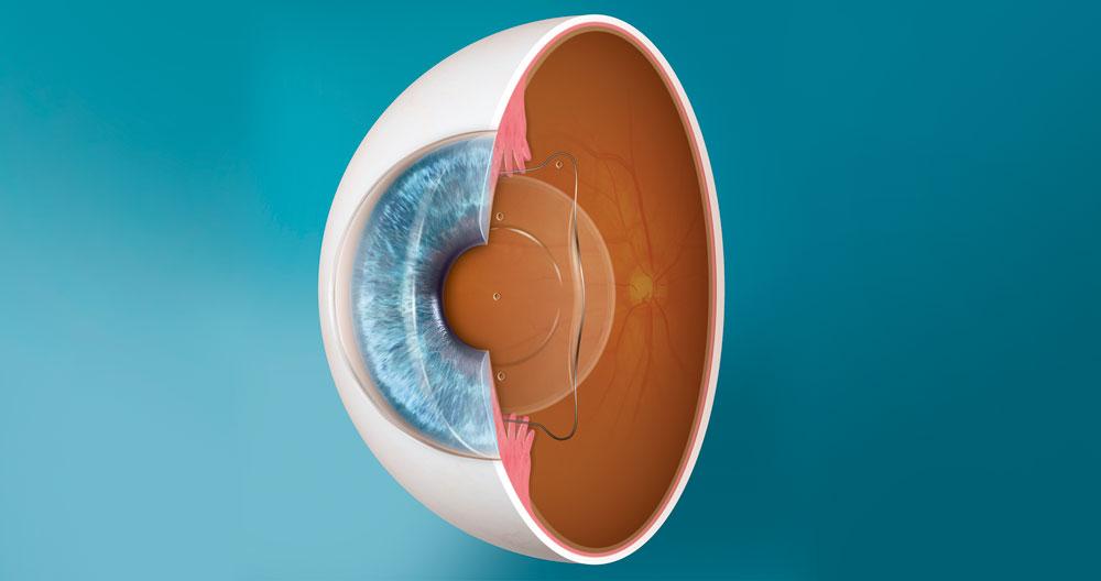 lente intraocular ICL