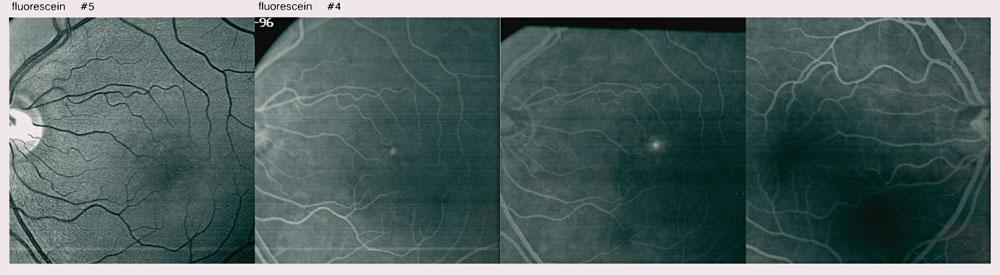 angiografia-ocular-murcia