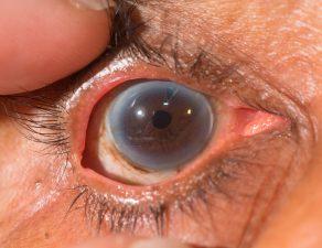 iridotomia tratamiento glaucoma