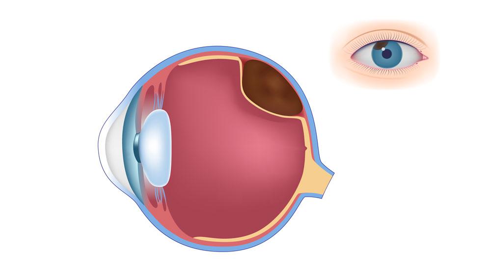 melanoma-ocular