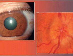 neuritis óptica