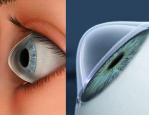 ectasia corneal