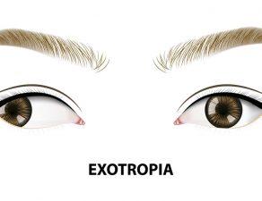 exotropía